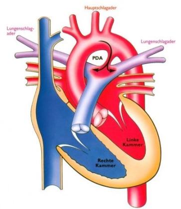 PDA Blutfluss sauerstoffgesättigt